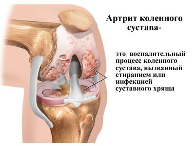 Изображение - Коленный сустав образуют artrit_kolennogo_sustava