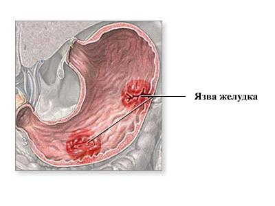 Уроки анатомии: расположение органов брюшной полости у человека